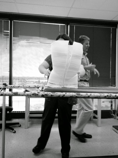 Scoliosis: Making of a back brace